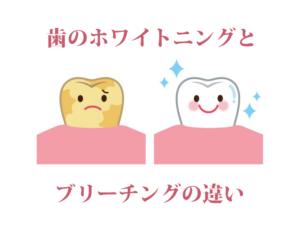 歯のホワイトニングとブリーチングの違い