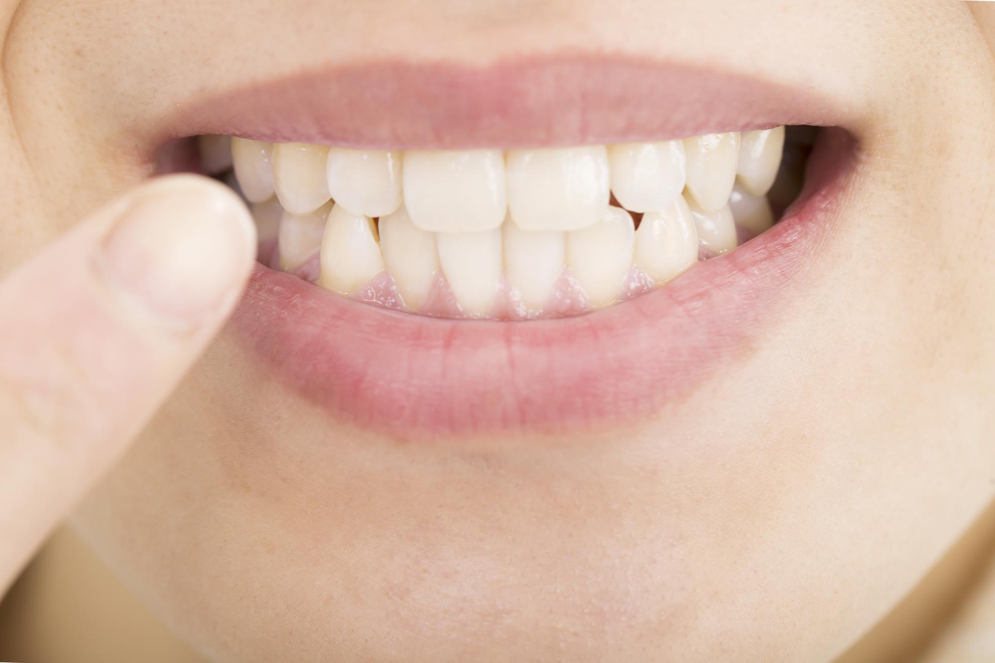 歯を白く維持するにはどれくらいの期間でホワイトニングするのが適切か